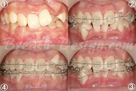 歯列矯正 乱杭歯 叢生 クラウディング 治療中