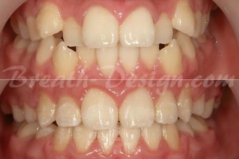 歯列矯正 術前術後比較写真