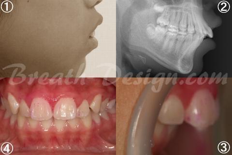 上顎前突(出っ歯)の歯列矯正治療 術前