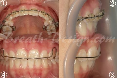 上顎前突(出っ歯)の歯列矯正 治療中