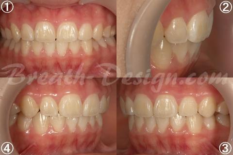 上顎前突(出っ歯)の歯列矯正 術後
