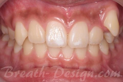 叢生歯列 術前